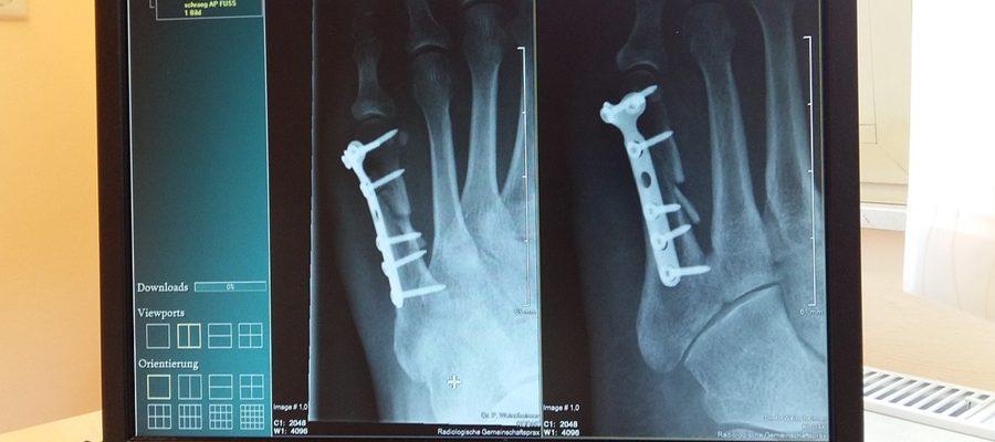 Osteoporoza cichy złodziej kości