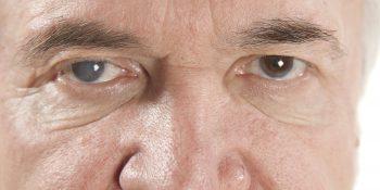 Zaćma - objawy i metody leczenia