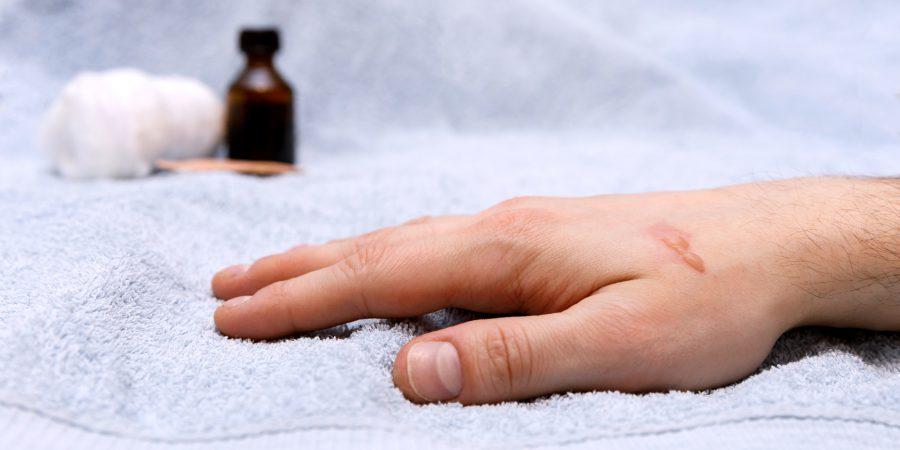 Domowe sposoby na leczenie oparzeń
