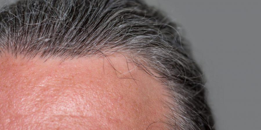 Naturalne sposoby na osłabione włosy u seniora