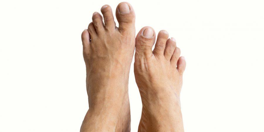 Stopa cukrzycowa – jak uchronić seniora przed amputacją stopy