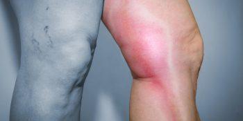Zakrzepowe zapalenie żył – częsty problem seniorów