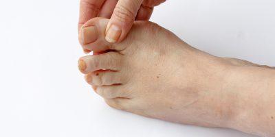 Grzybica paznokci – nie tylko problem natury estetycznej