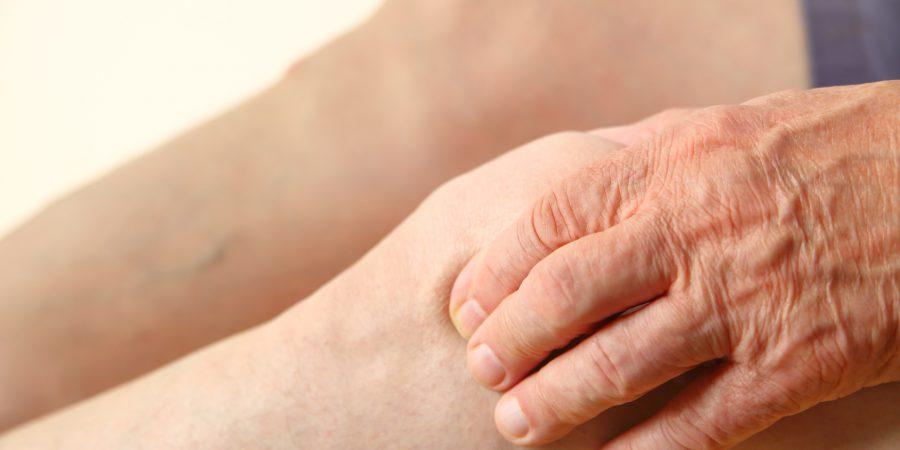 Owrzodzenia podudzi – ziołowa terapia wspierająca regenerację skóry