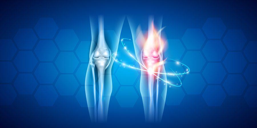 Reumatoidalne zapalenie stawów – dlaczego nie wolno go lekceważyć