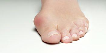 Paluch koślawy - przyczyny oraz leczenie deformacji stopy