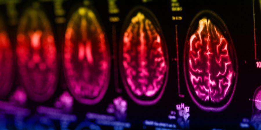 Jak zwiększyć potencjał mózgu w starszym wieku