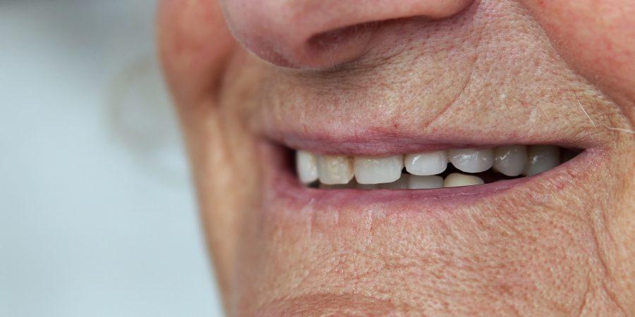 Zniszczone uzębienie – wpływ utraty zębów na układ pokarmowy