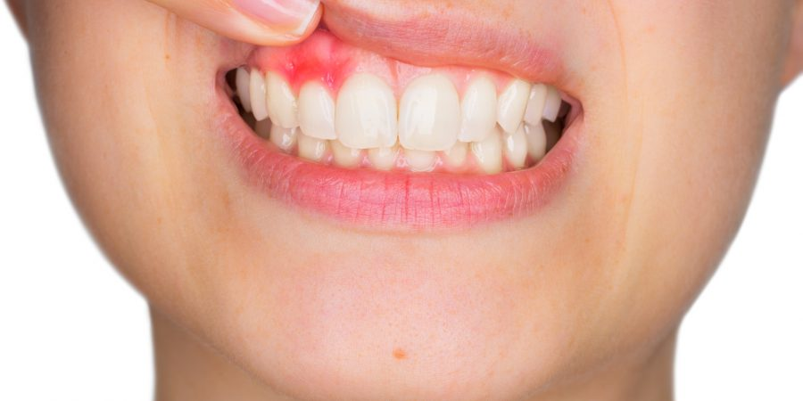 Składniki pożywienia chroniące przez chorobami zębów i dziąseł
